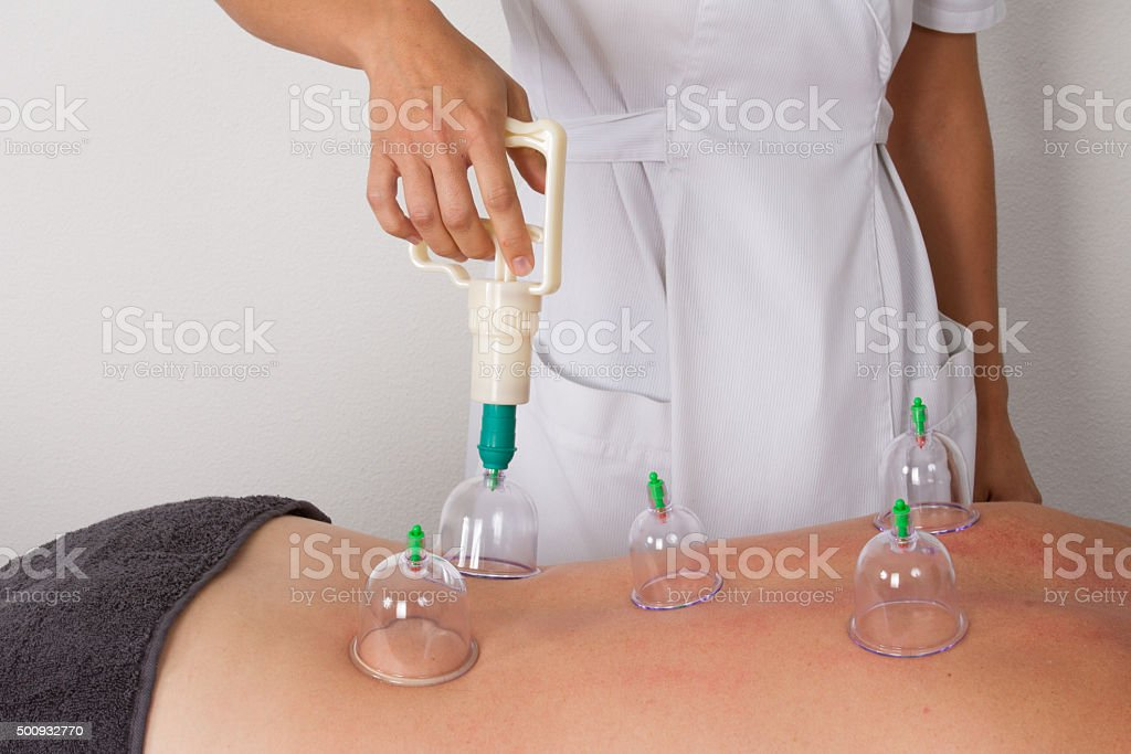 Detail of an acupuncture therapist removing a glass globe stock photo
