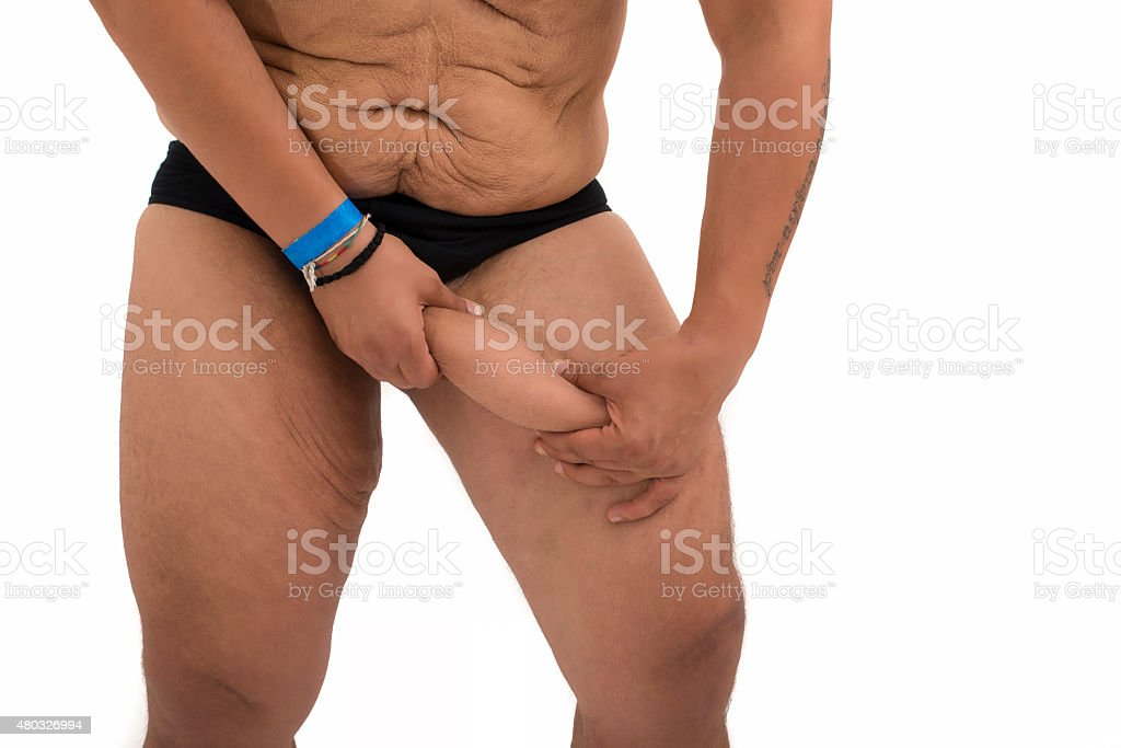 details of a fat man with excessive skin on legs stock photo