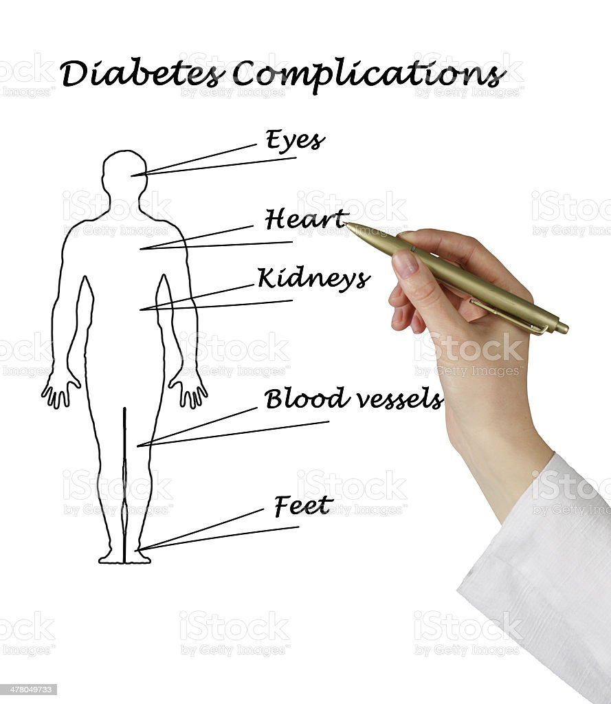 diabetes complications stock photo