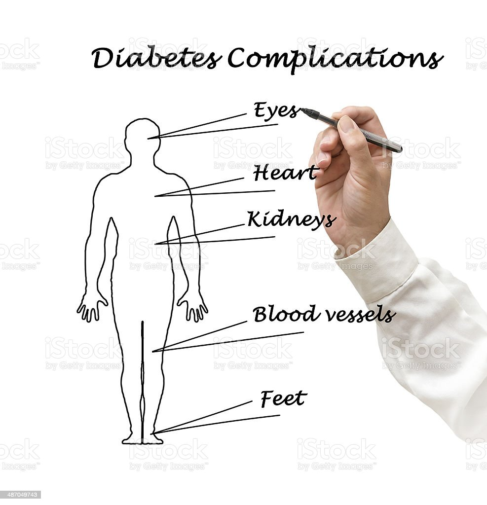 Diabetes risk factors royalty-free stock photo