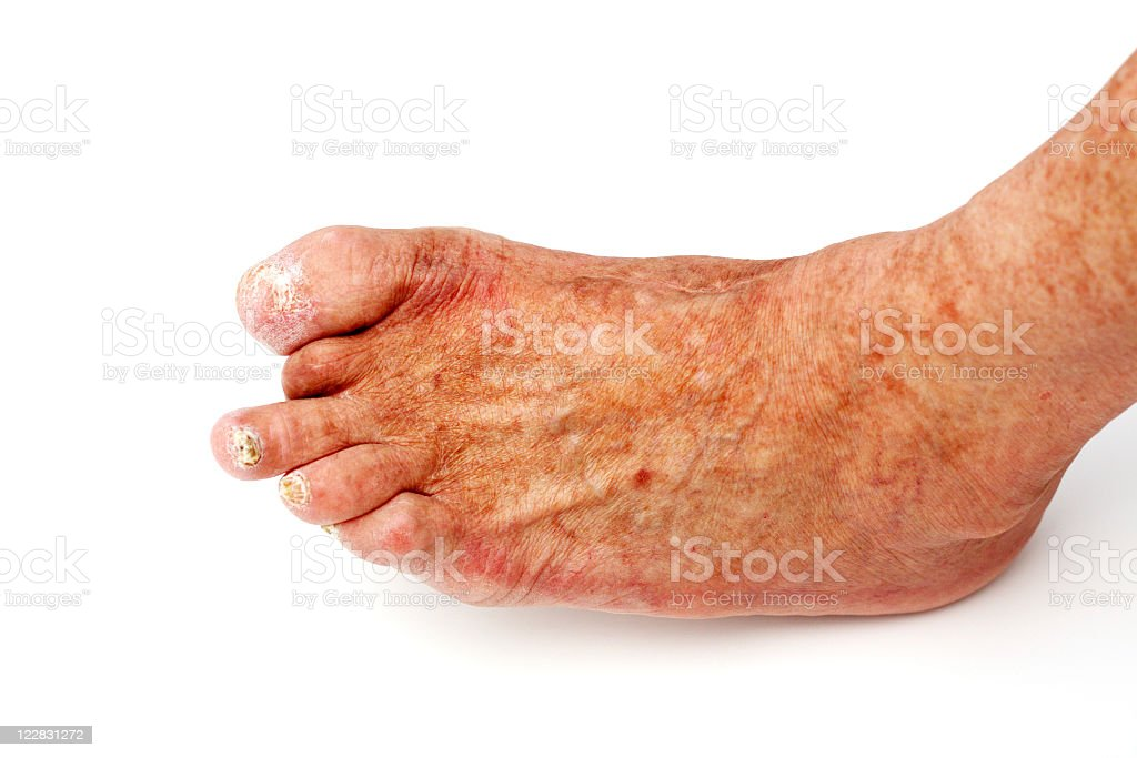 Diabetics foot missing a toe isolated on white stock photo
