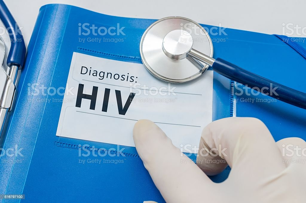 HIV diagnosis on blue folder with stethoscope. stock photo