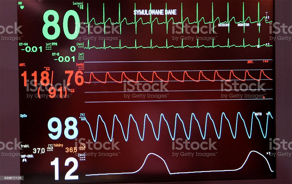 EKG ECG diagnosis waveform recording heart rhythm electrical activity stock photo