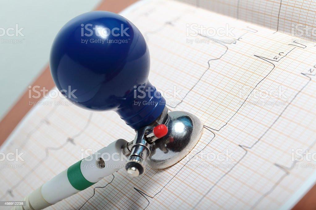 ECG diagnostics on the desktop at the doctor stock photo