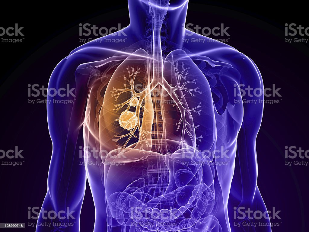 Diagram of a torso showing site of cancer in the lung stock photo