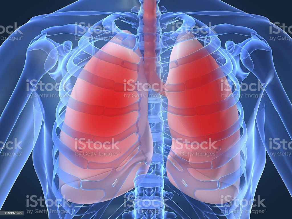 Diagram showing inflamed or infected lungs stock photo
