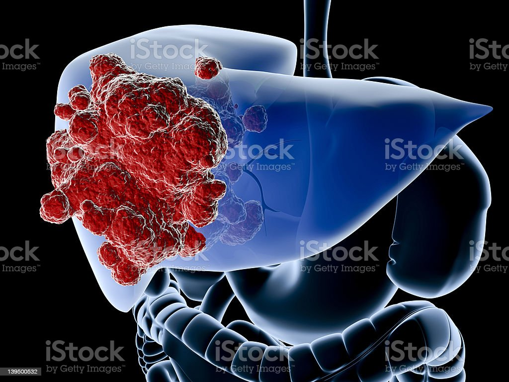 A diagram showing the liver in blue and a cancer in red royalty-free stock photo