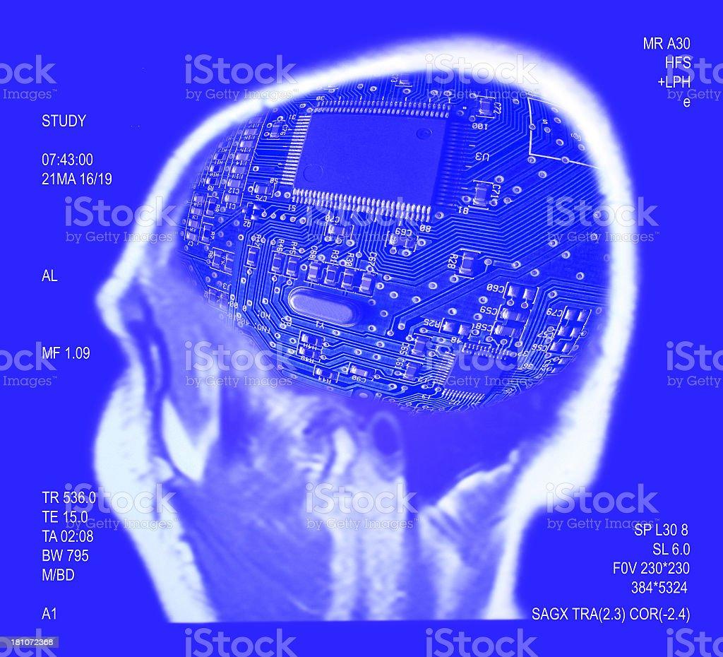 Digital brain royalty-free stock photo