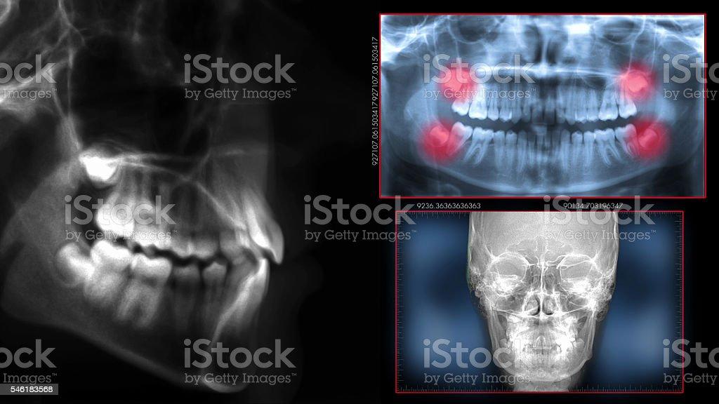 digital cephalometric xrays dental scan stock photo