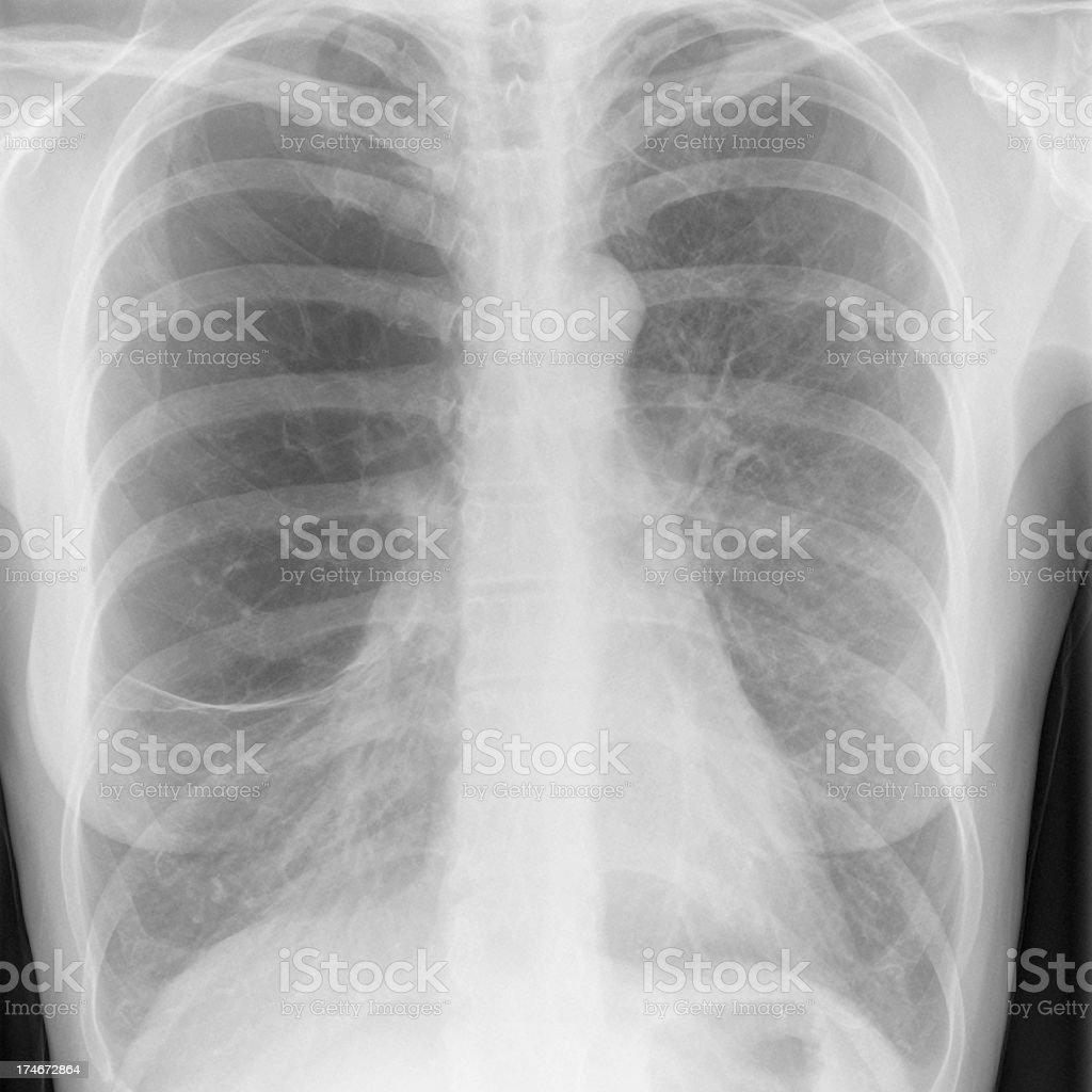 digital chest x-ray of a heavy smoker with emphysema royalty-free stock photo