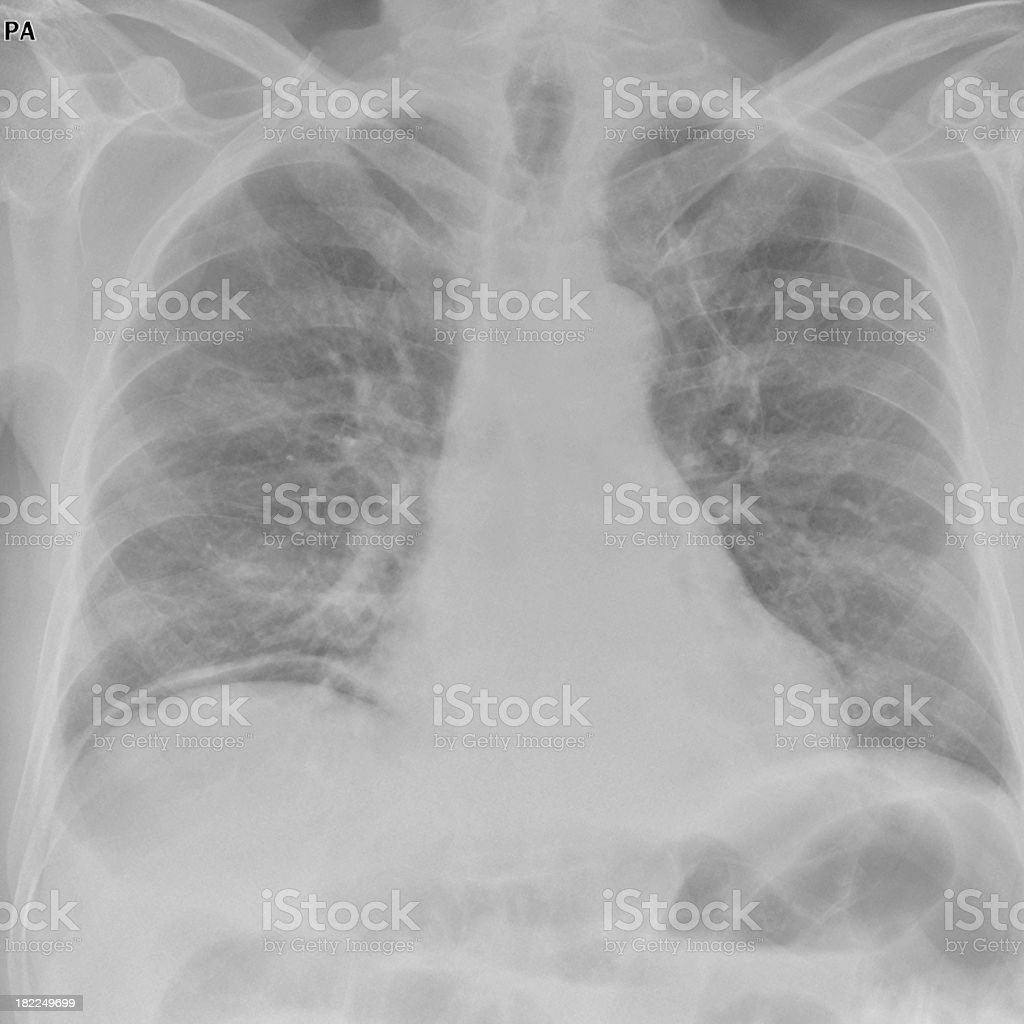 digital chest x-ray of a perforated ulcer with pneumoperitoneum stock photo