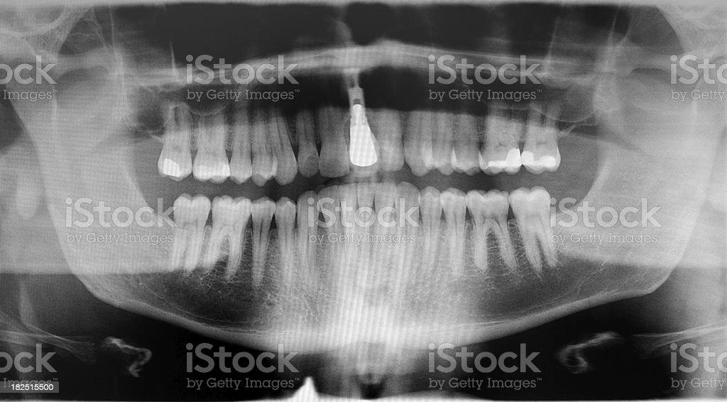 Digital Dental Pan X-ray of Full Mouth Implant, Teeth & Fillings royalty-free stock photo
