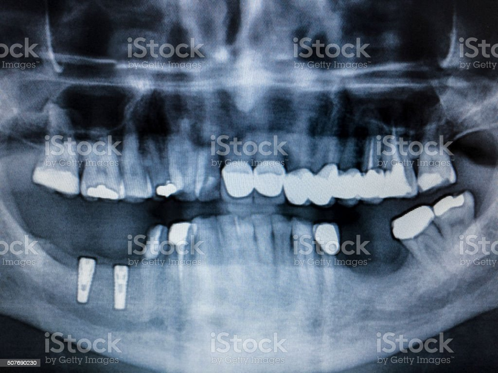 Digital Dental X-ray of Mouth and Teeth,Fillings stock photo