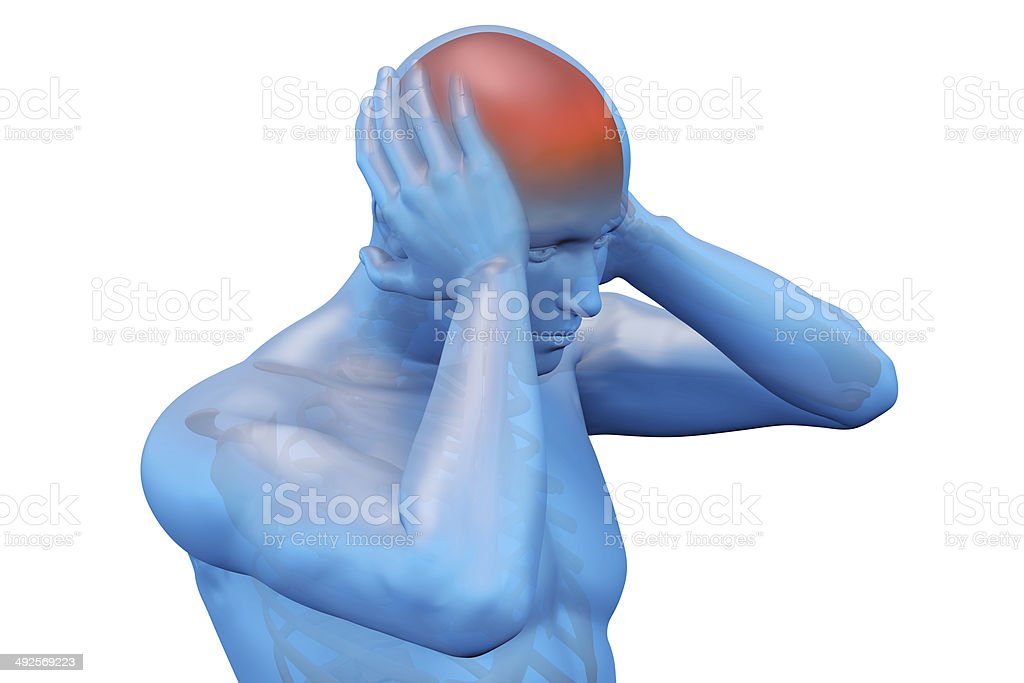 Digital illustration of a headache stock photo