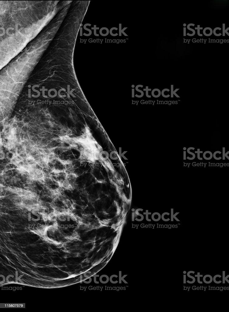 Digital Mammography stock photo