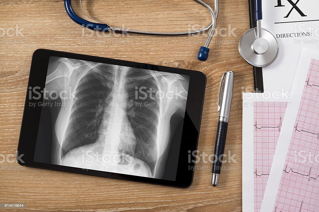 Digital Tablet with X-ray and Medical Equipments on Wooden Desk stock photo