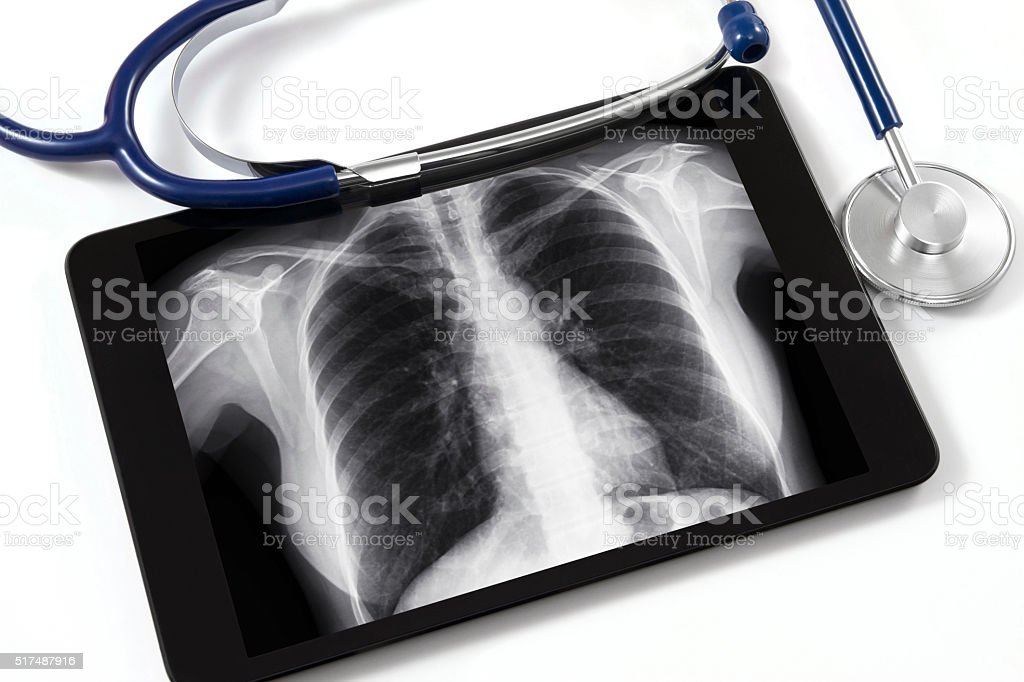 Digital Tablet with X-ray and Stethoscope stock photo