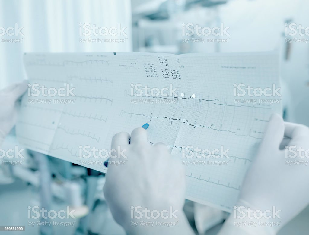 Discussion between doctors about the patient's cardiogram stock photo