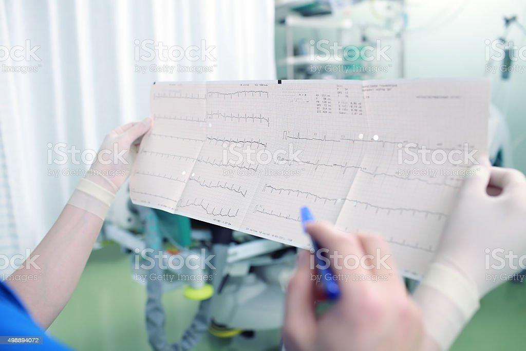 Discussion doctors ECG at the workplace stock photo