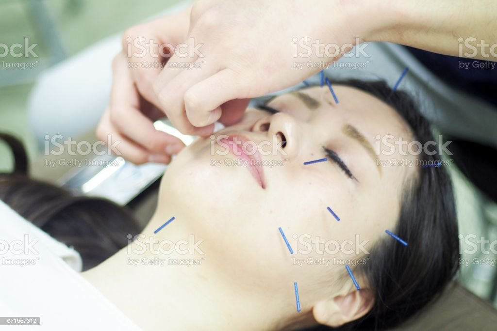 Disinfect women's face for acupuncture stock photo