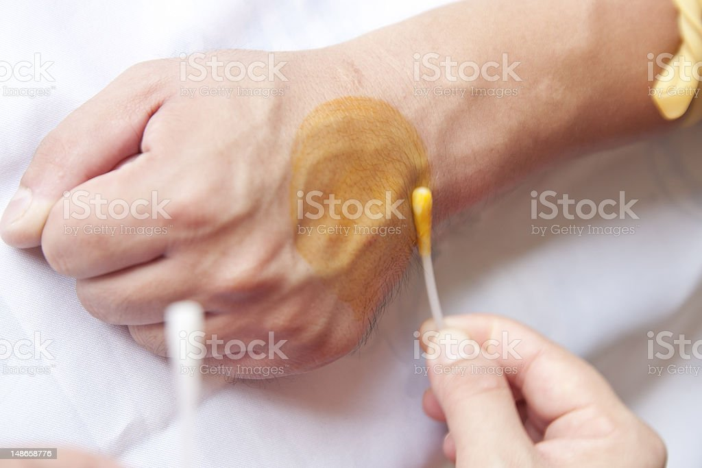 disinfecting patient's skin stock photo