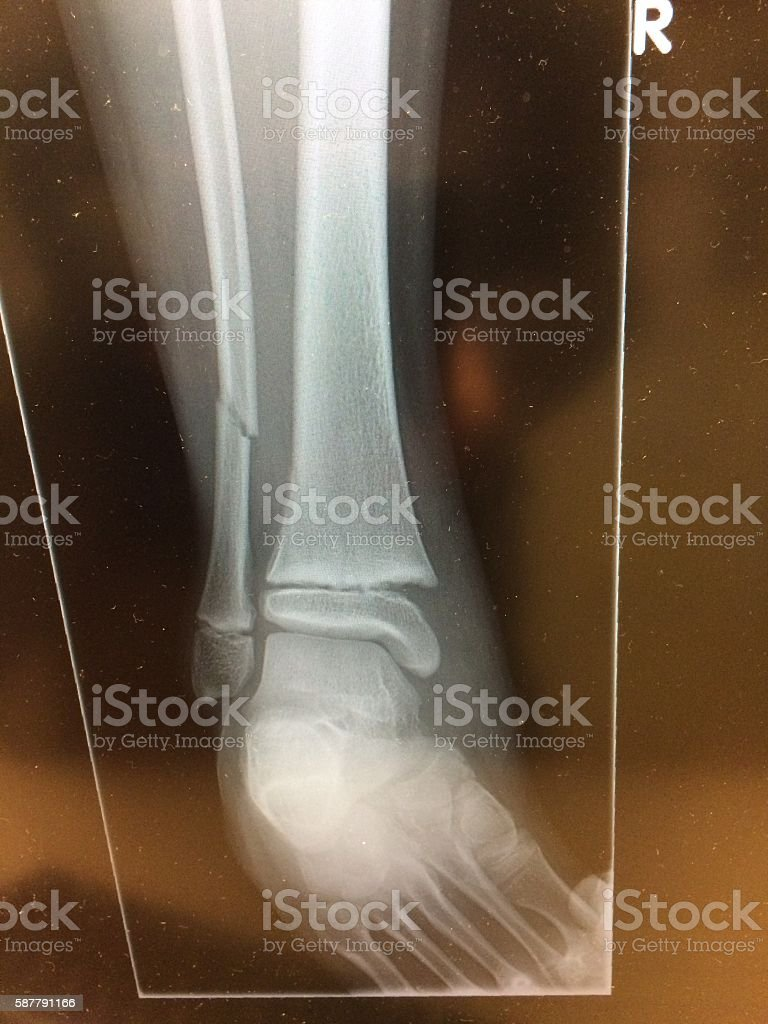 Distal Tibia Salter-Harris Type II Fracture in Children stock photo