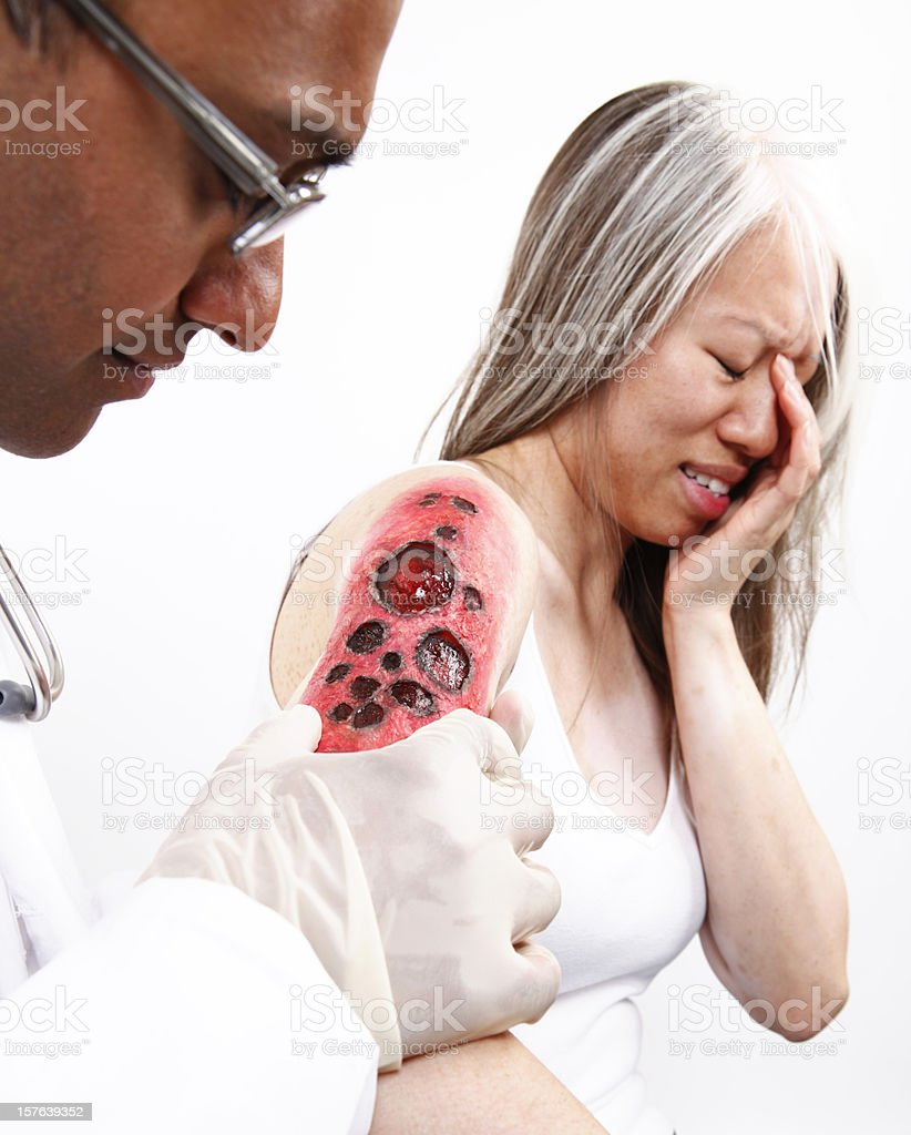 Docter Examining Burn on Patient stock photo