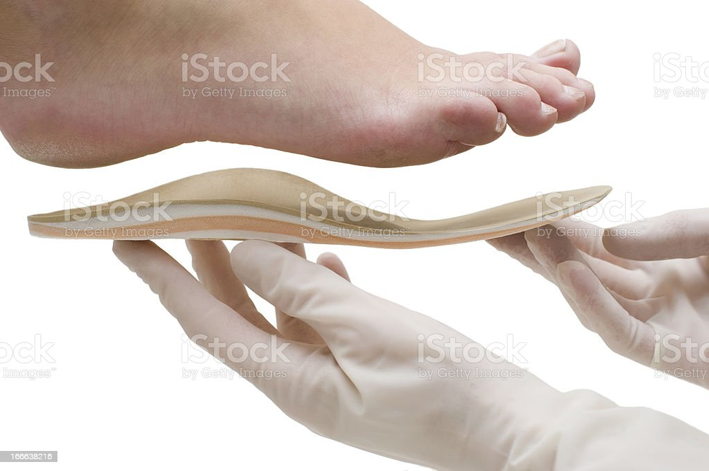 Doctor adapts insole to foot shape stock photo