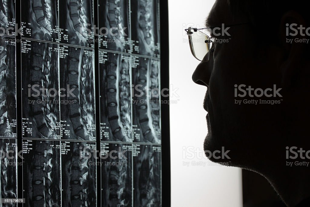 Doctor analyzing MRI scans of a person's vertebrae royalty-free stock photo