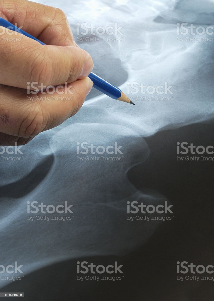 Doctor checking an x-ray stock photo