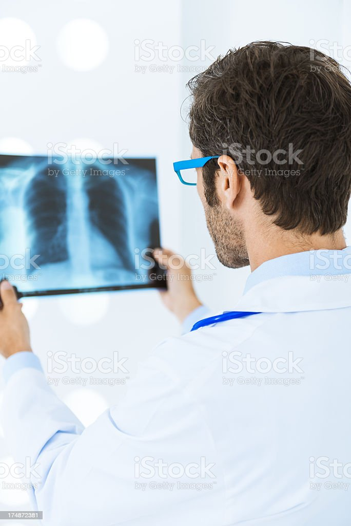 Doctor checking X-Ray of lungs royalty-free stock photo