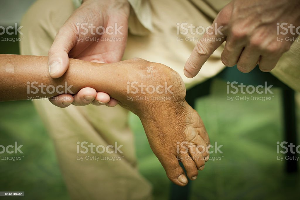 Doctor examining a deformed clubfoot stock photo