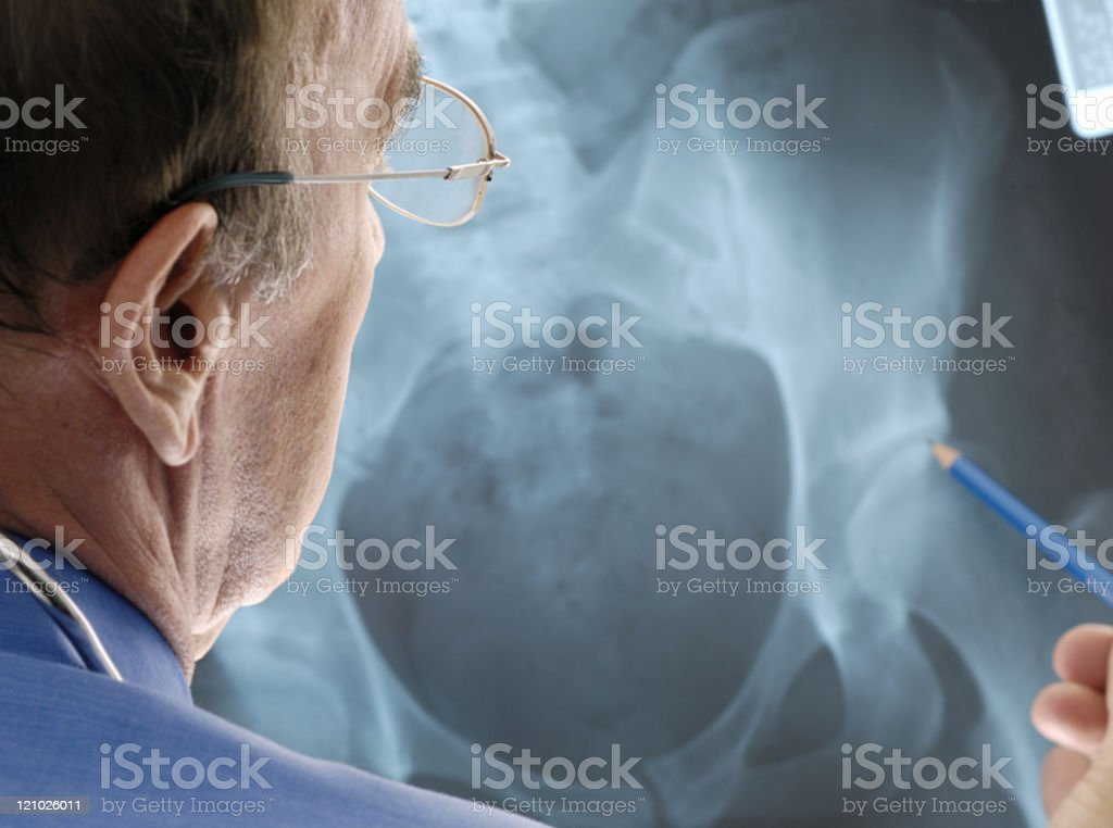 Doctor examining osteoporosis on an x-ray. stock photo
