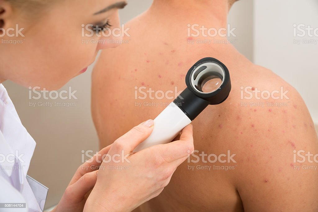 Doctor Examining Pigmented Skin stock photo