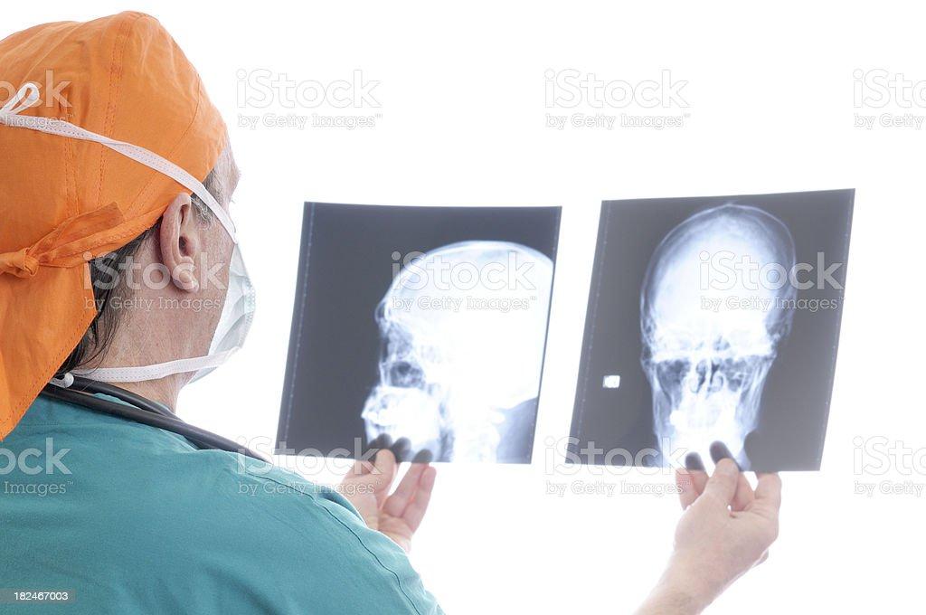 Doctor examining skull x-ray royalty-free stock photo