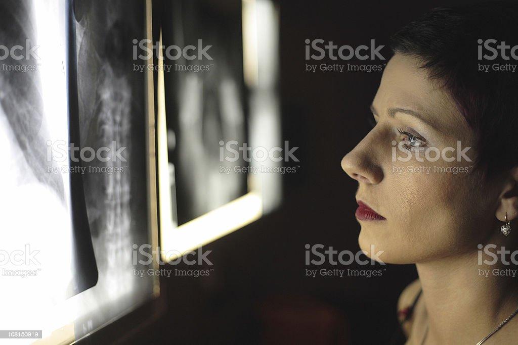 Doctor Examining X-ray Image royalty-free stock photo