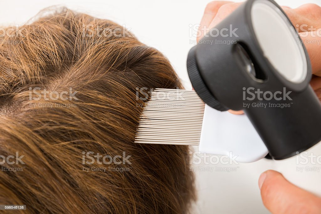 Doctor Hand Doing Treatment Of Patient's Hair stock photo