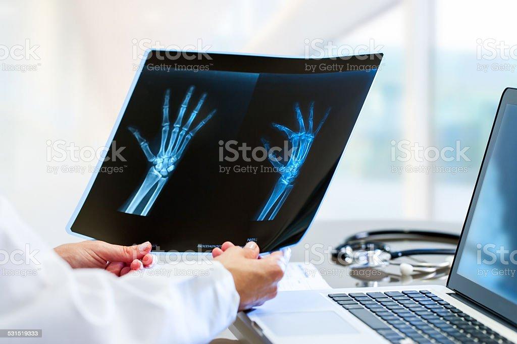 Docteur mains tenant x ray au bureau pour travailler. photo libre de droits