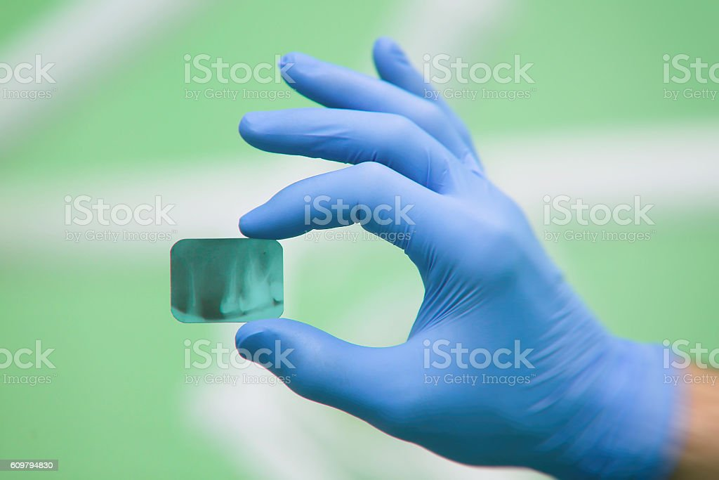 Doctor holding and looking at dental x-ray stock photo