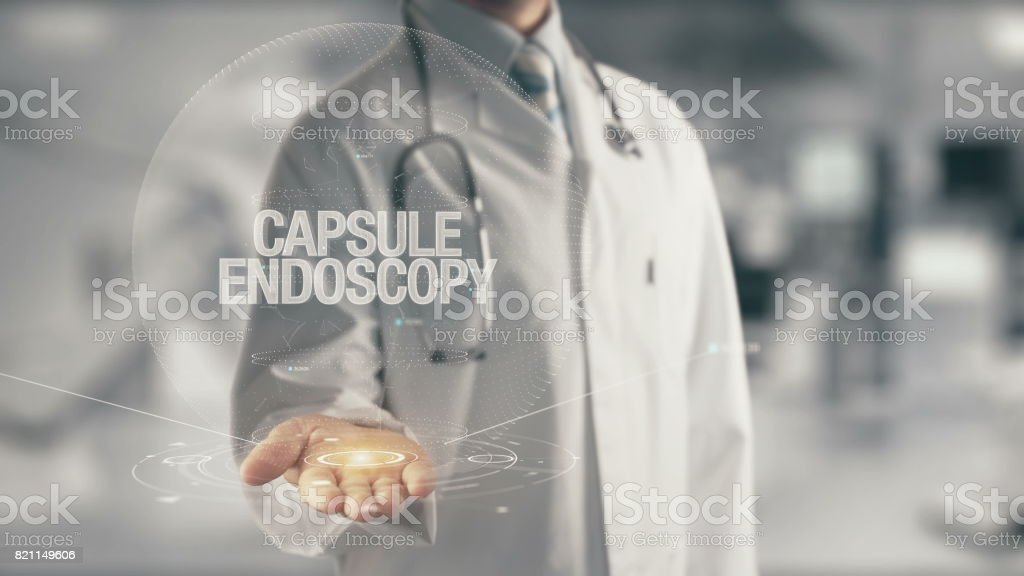 Doctor holding in hand Capsule Endoscopy stock photo