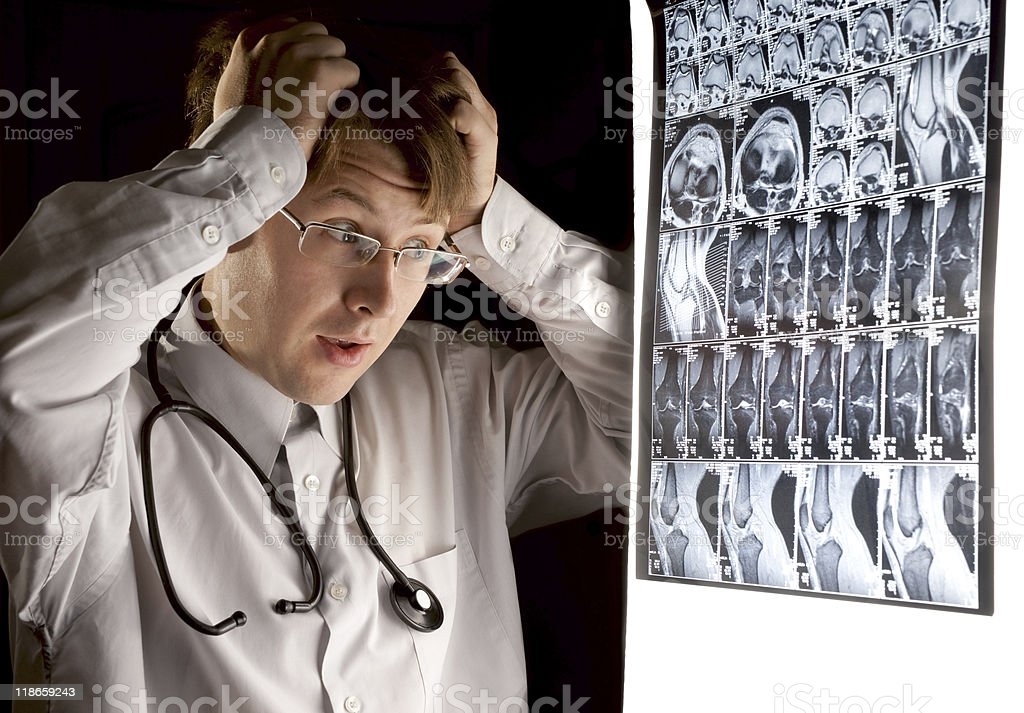 Doctor looking at the MRI scan with panic stock photo
