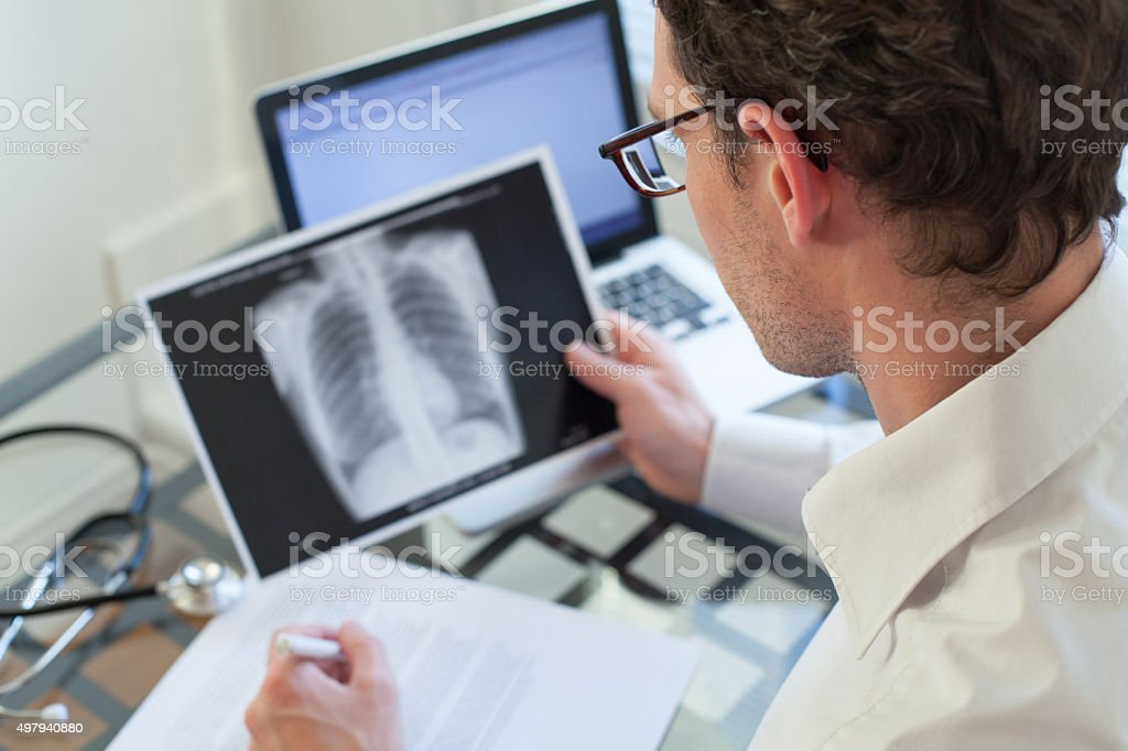 doctor looking at x-ray of lungs and writing diagnosis stock photo