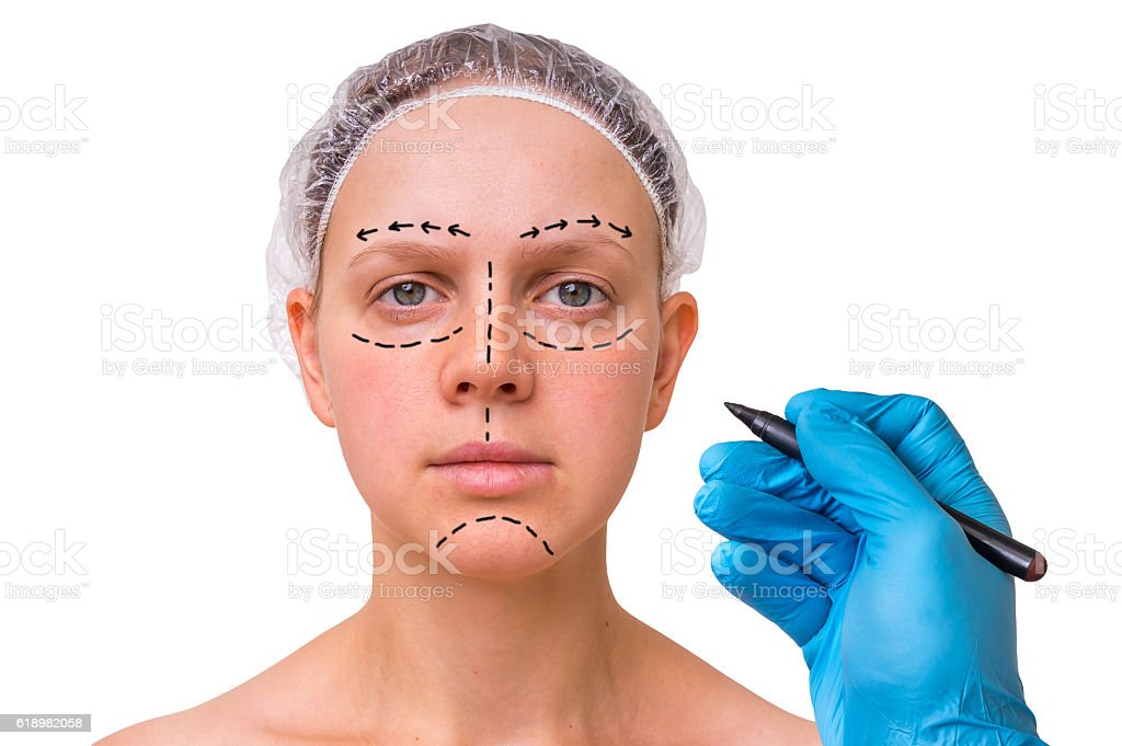 Doctor makes dotted lines on female face for cosmetic facelift stock photo