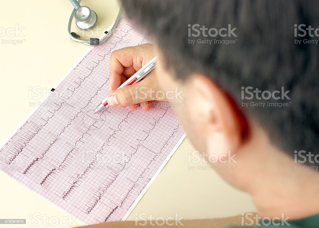Doctor makes notes on the ECG. Doctor analyzes ECG. stock photo