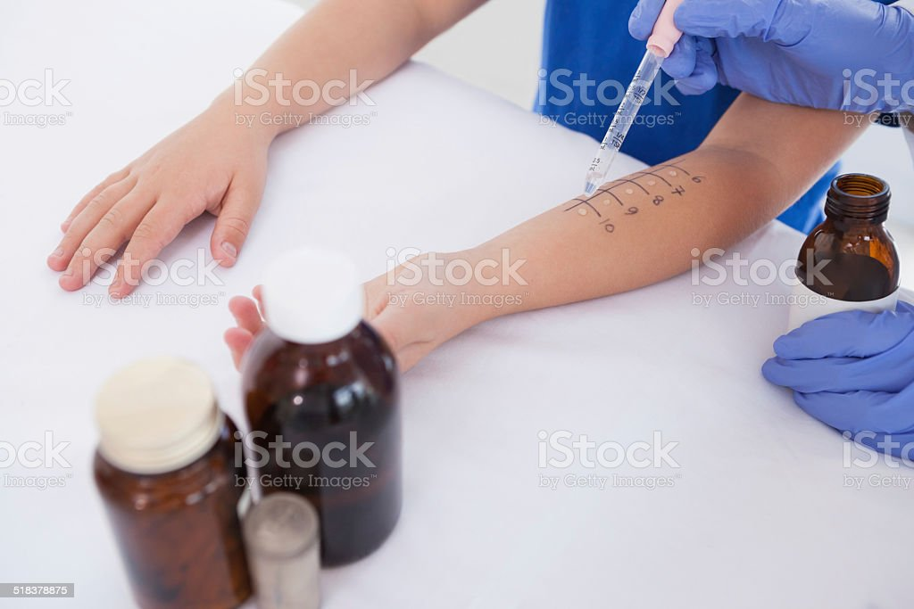 Doctor performing a skin prick test stock photo