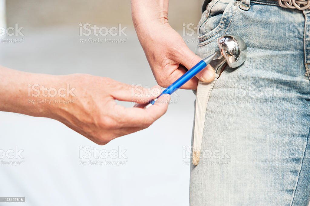 Doctor pointing at duohead hip prostesis of patient stock photo