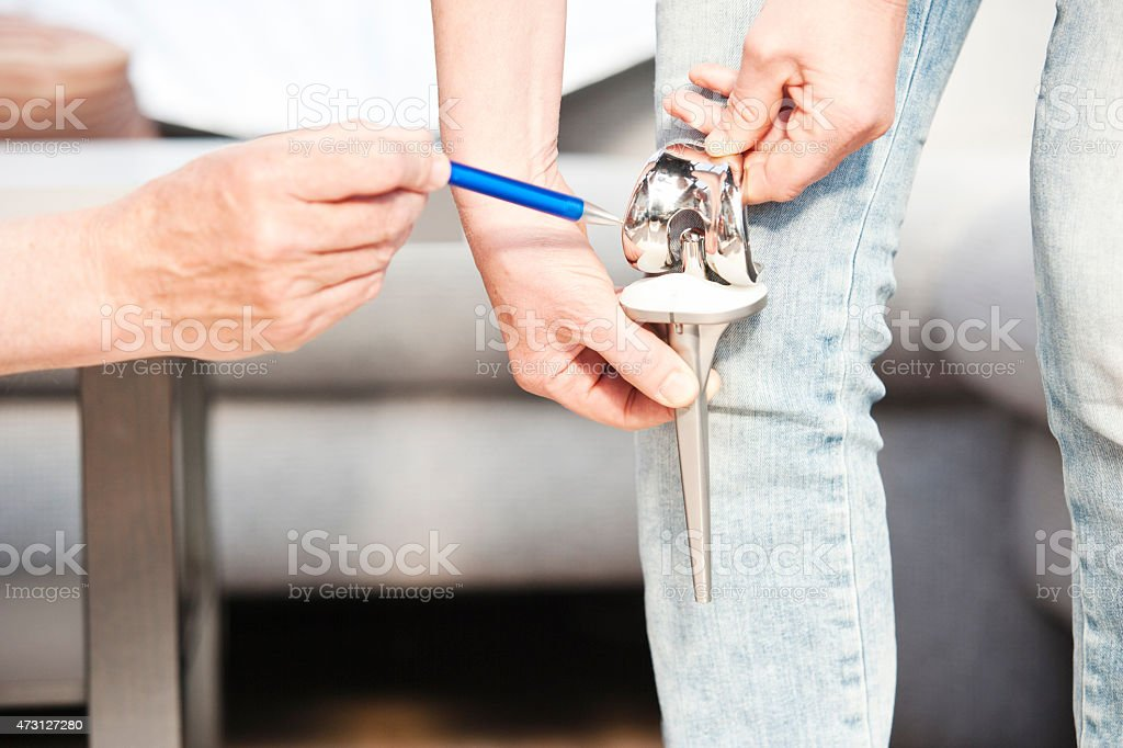 Doctor pointing at total knee prostesis of patient stock photo