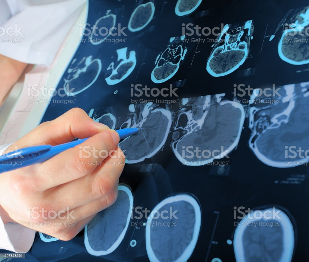 doctor points to the area of CT scan stock photo