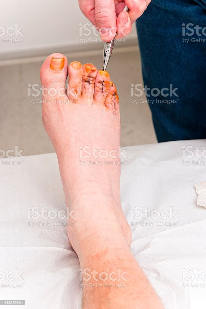 Doctor pulling a surgical wire out of a foot stock photo