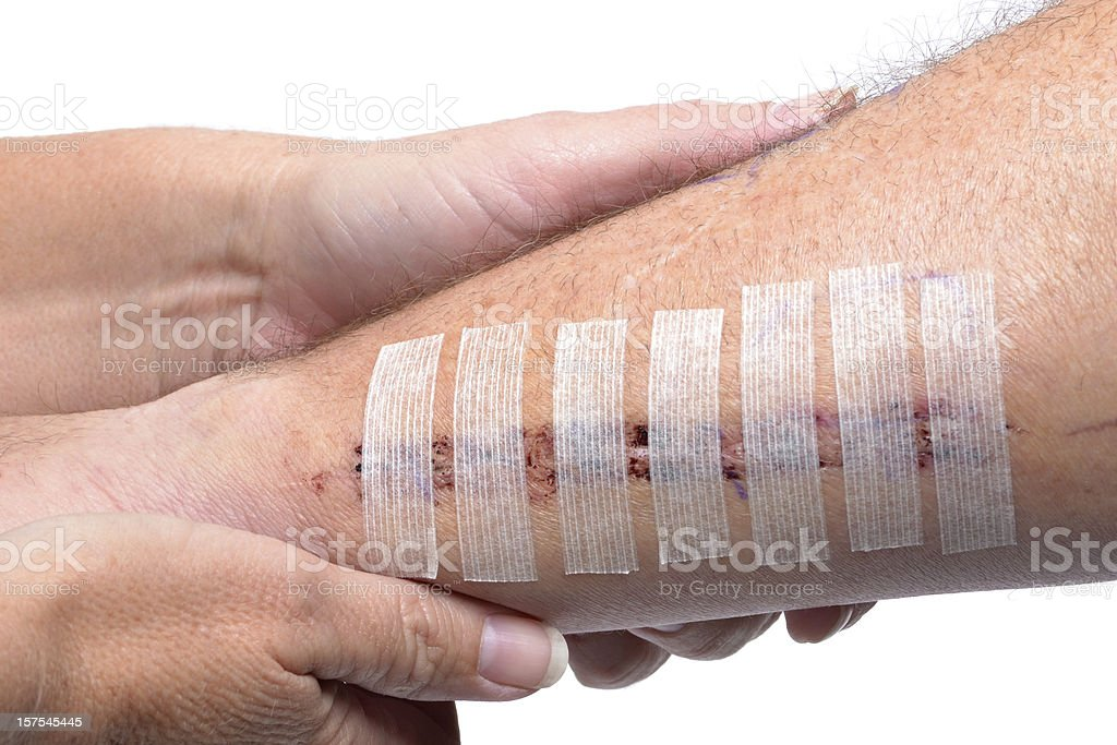 Doctor putting stitches on a patients arm stock photo